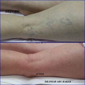 early varicose veins surgery